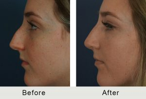 Before and After Female Teen Charlotte Rhinoplasty