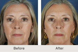 Facelift and dermal fillers in Charlotte