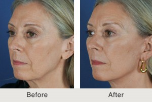 Kulbersh Charlotte Facelift Filler3 large 300x203 Before & After