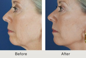 Mini lift and dermal fillers in Charlotte