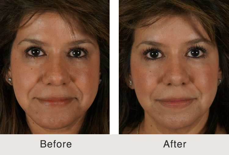 Facial Fillers Before And After 10