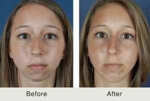 chin augmentation prices charlotte nc