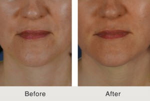 dermal fillers for jawline