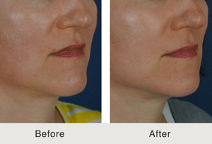 Fillers to Jawline and Marionette beforeafter3 12 26 13 Before & After