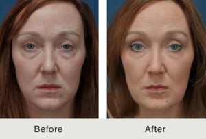 charlotte facial fillers 300x203 Before & After