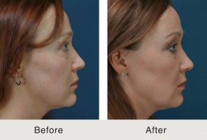 facial fillers in charlotte