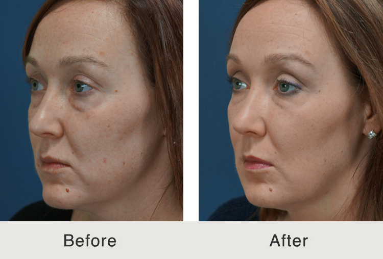 Facial Fillers Before And After 48