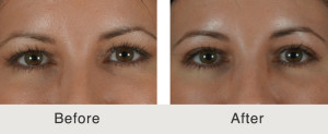 Charlotte-eyelift