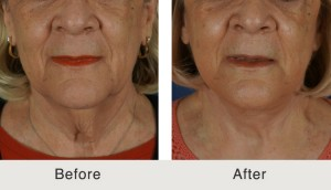 Facelift Surgery in Charlotte