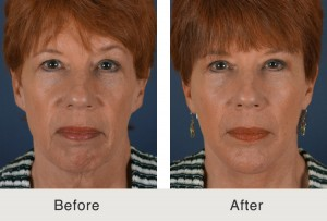 Chin Iimplant Before and After photo