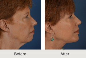 Chin Implant Patient