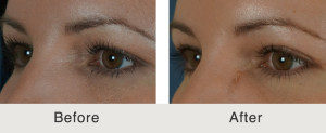 blepharoplasty north carolina