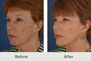 Facelift Chin Implant