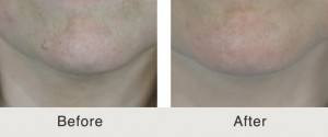 Mole Removal Before and After photo