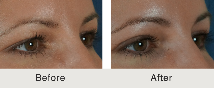 Blepharoplasty Before And After Carolina Facial Plastic