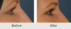 Before and After upper blepharoplasty