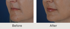 Before After Lip Fillers 300x125 Before & After