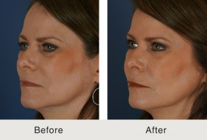 non-surgical cheek augmentation with Juvéderm Voluma XC