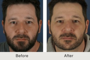 Rhinoplasty Before After 300x203 Before & After
