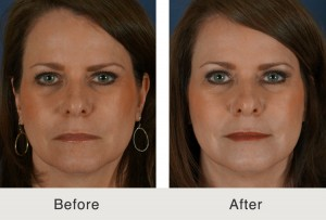 Cheek Augmentation Voluma