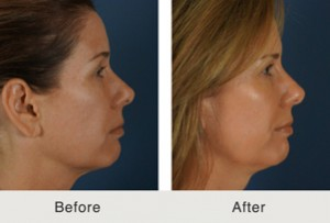 Before After Botox Fillers 300x203 Before & After