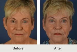 Charlotte Otoplasty Surgery