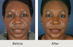 African American Nose Job Charlotte, NC Before & After