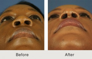 African American Nose Job Charlotte Before and After