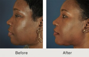 Ethnic Rhinoplasty North Carolina Before and After
