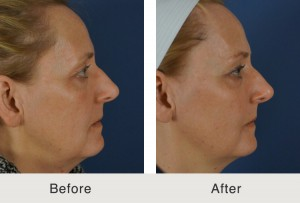 sculptra north carolina 300x203 Before & After