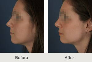 Before and After Rhinoplasty Nose Job