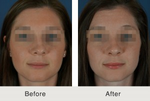 before after rhinoplasty nose job 300x203 Before & After