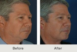 Male Chin Implant Before and After
