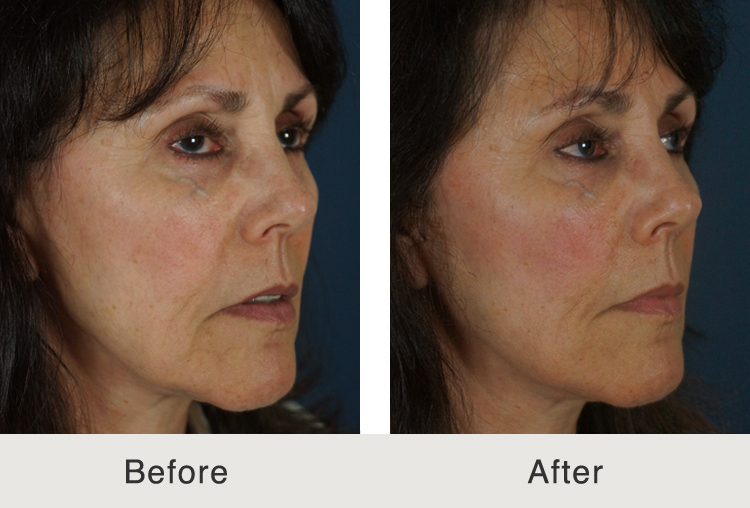 Forum on this topic: How to Improve Your Facial Skin, how-to-improve-your-facial-skin/
