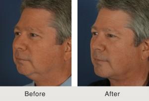 Male Chin Implant Procedure