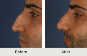 Charlotte Rhinoplasty Male Before and After