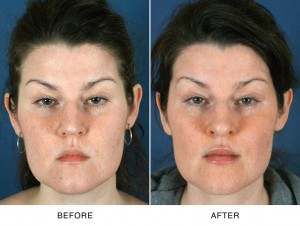 Lip Augmentation North Carolina Before and After