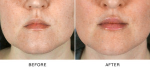 Lip Augmentation North Carolina
