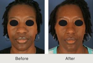 African-American-nose-job-Charlotte-NC