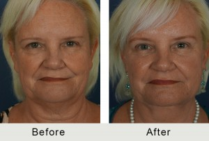 Before and After Charlotte Endoscopic Browlift Facelift Necklift