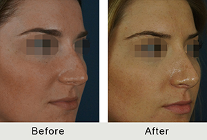 Before and After Charlotte Teen Rhinoplasty for Hump