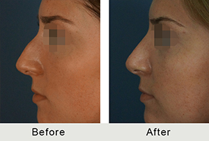 Before and After Charlotte Large Nose Rhinoplasty