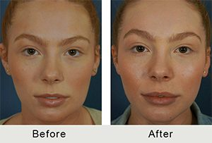 BeforeAfter-Female Charlotte Lip Augmentation -5-25-2016-front-small