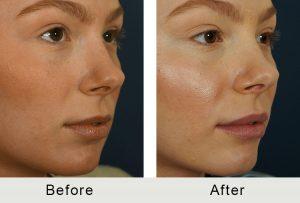 North Carolina Facial Injectable Lips