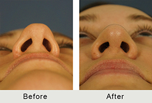 BeforeAfter-Charlotte Teen Rhinoplasty for Hump-left-3-16-2016-small