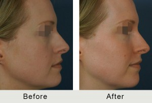 BeforeAfter-Fillers to Tear Trough and Cheeks Charlotte-right-3-16-2016-300x203