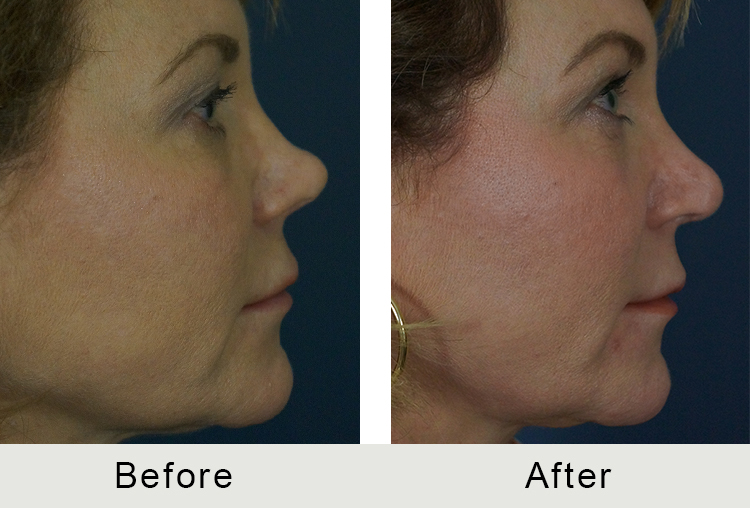 BeforeAfter-Revision rhinoplasty charlotte-right-3-16-2016