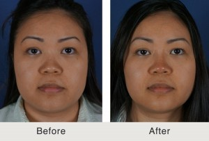 Before and After photo of asian woman. She had a liquid rhinoplasty procedure performed at our Charlotte, NC clinic.
