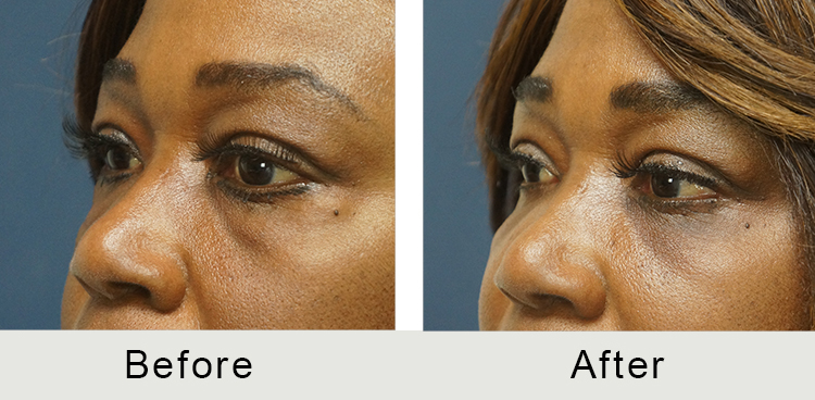Blepharoplasty Before and After