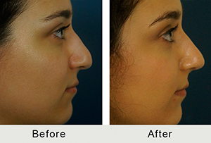 Before and After Charlotte Middle Eastern Rhinoplasty